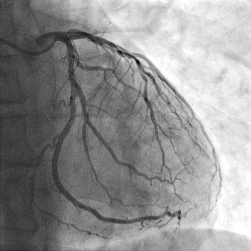 angiogram tulsa oklahoma
