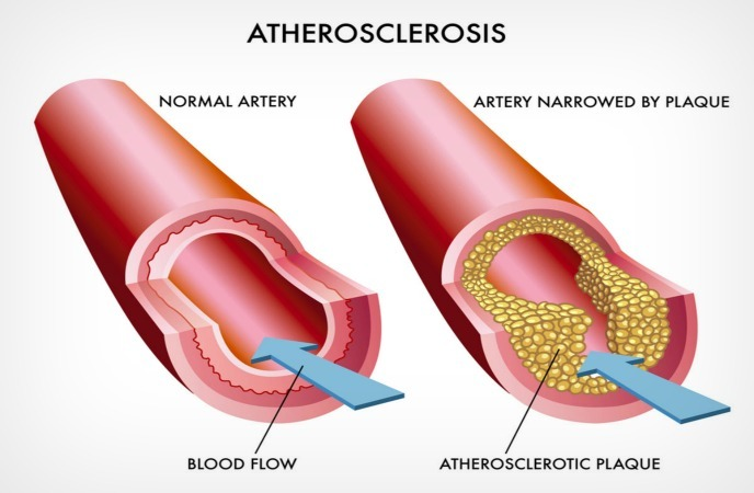 Image showing clogged artery caused by atherosclerosis