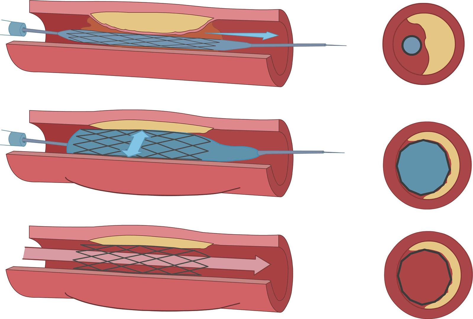 Endovascular Angioplasty and Stent Example Image - Tulsa Cardiovascular